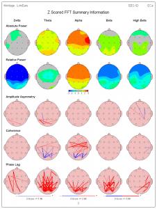 brain map3